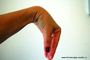 vaje-roke